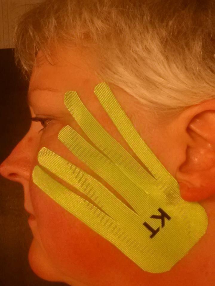 KT Tape app for Temporomandibular Joint Disorder (or TMJ.) Client enjoyed immediate pain relief! - Big thank you to Karen Johnson Lawrence (and Joe McCaleb - @Deborah Schauland PT) for the photo & the positive feedback