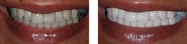 Before and After using the Sonic Blue Teeth Whitening Toothbrush System
