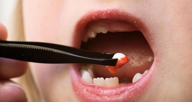 32 Best Dry Socket Images On Pinterest Dental Care