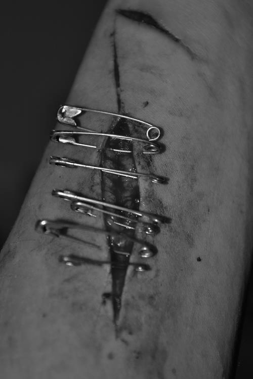 gash in arm held closed (pretty much) with safety pins - #R0UGH PIN MIX