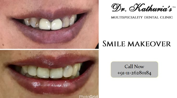 Smile Makeover done at Dr. Kathuria's Multispeciality Dental Clinic #SmileMakeover