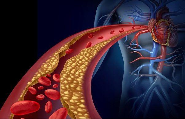Народные средства против высокого содержания холестерина в крови