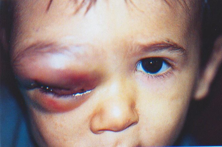 "cluelessmedic: ""Orbital Cellulitis • life threatening infection affecting the entire orbit • organisms; strep pneumoniae, staph aureus, strep pyogenes • symptoms - fever, peri-ocular pain, inflamed lids, diplopia, pain with eye movement • signs -..."