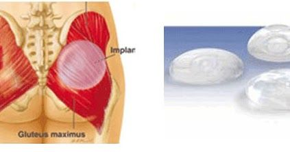 Benefits Of Buttock Augmentation Surgery in India - A Best Place