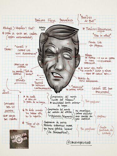 La Chuleta de Osler: Neurología, otorrinolaringología - Parálisis facial periférica (Parálisis de Bell)
