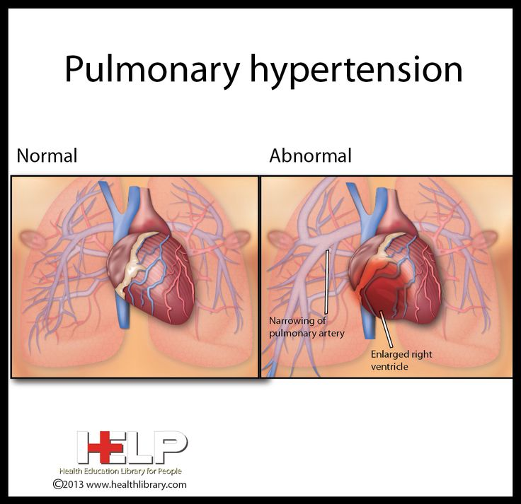 25+ best ideas about Pulmonary Hypertension on Pinterest ...