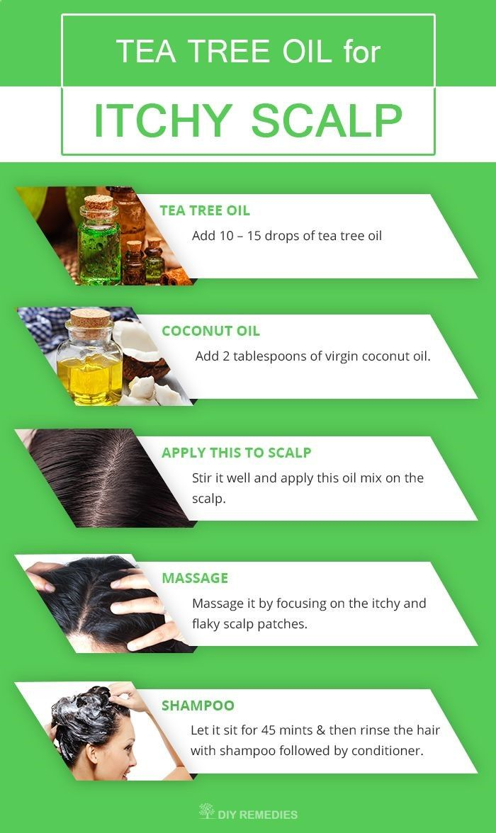 Remedies for Psoriasis - Get Rid of Itchy Scalp and Dandruff With Tea Tree Oil. Dry, Flaky, Oily, Itchy Scalp Treatment REAL PEOPLE. REAL RESULTS 160,000+ Psoriasis Free Customers