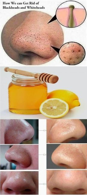 How to Remove Blackheads from your Nose?