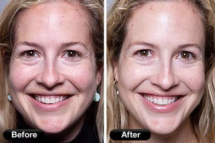 Treat effectively the fine line wrinkles, large pores, uneven skin ...
