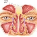 Herbal Remedies for Sinus Infection. I liked seeing where all the sinuses are because it makes my sinus headaches make more sense.