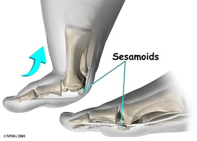 Foot Sesamoiditis Anatomy, Sesamoid Bones Movement -- mine are coming out October 5th :(