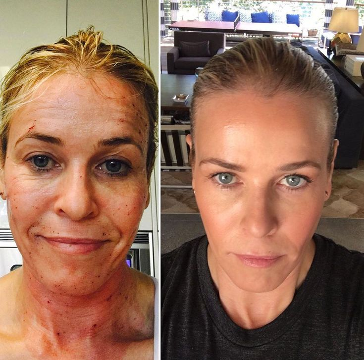 """Chelsea Handleris sharingthebeauty secret that's worked wonders for her.  The comedian and talk show host recommended ProFractional laser treatment to her nearly 3 million Instagram followers on Wednesday, and her results werequite remarkable.  """"Before and after.#profractional laser,"""" Handler, 41"""