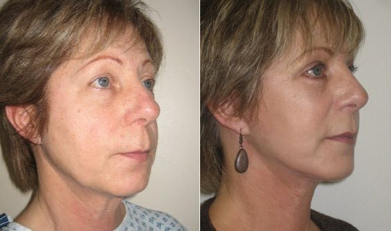 45-54 year old woman treated with Facelift. Result ...