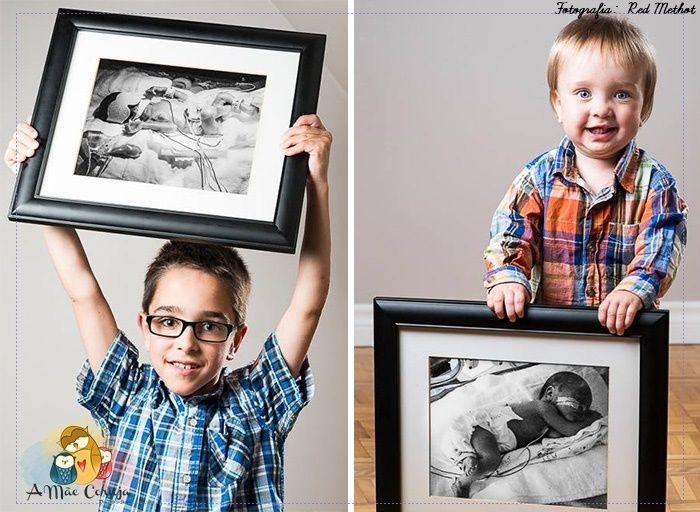 Fotografias que retratam o ANTES e DEPOIS de bebês prematuros