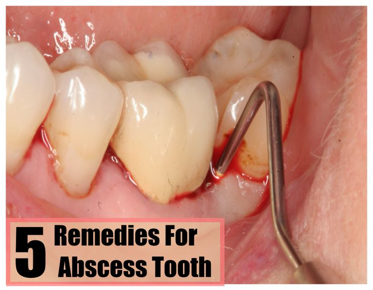 Natural Treatments For Tooth Abscess