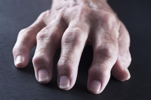 Rheumatoid nodules usually occur in active cases of rheumatoid arthritis. What is the significance of finding a rheumatoid nodule?