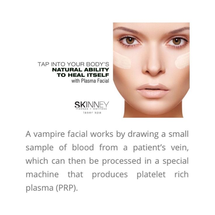 """99 Likes, 10 Comments - SKINNEY Medspa (@skinneymedspa) on Instagram: """"Monday morning read.. 📖💉 Plasma Facials aka PRP, helps to repair and regenerate new collagen and…"""""""