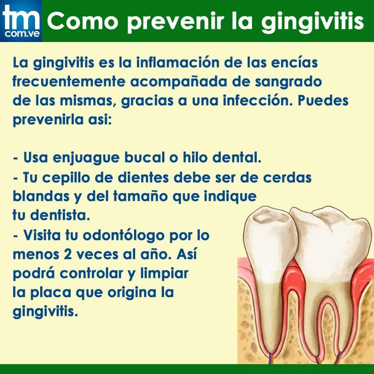 Muchas personas tienen algún grado de gingivitis. Ésta generalmente aparece durante la pubertad o durante las primeras etapas de la edad adulta, debido a los cambios hormonales. Puede persistir o reaparecer con frecuencia, según la salud de sus dientes y encías.