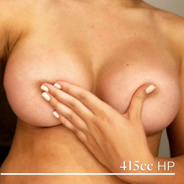 Dr Tang has transformed this patient to a 10F from a 10C! She shared these impressive results of her 415cc high profile implants at 2 months post op. ‪#‎tcidrtang‬ Book a consult with the incredible Dr Tang just by calling 1300 741 852 or making an enquiry here: bit.ly/1JqLsyN