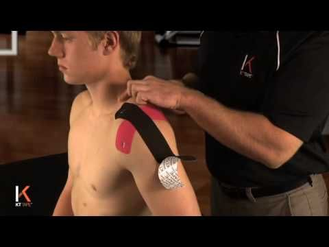 Good shoulder tutorial on KT taping the AC joint