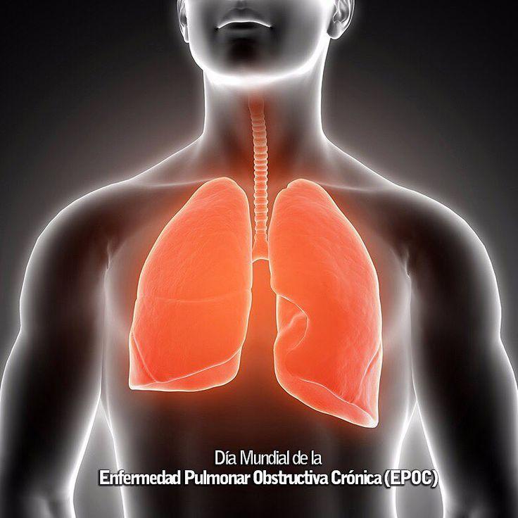 La Iniciativa Mundial contra la Enfermedad Pulmonar Obstructiva Crónica (GOLD) organiza anualmente el Día Mundial de la Enfermedad Pulmonar Obstructiva Crónica (EPOC) el segundo o tercer miércoles de noviembre. En el Día Mundial de la EPOC se intenta promover en todo el mundo una más profunda comprensión de la enfermedad y una mejor atención a los pacientes. El Día Mundial organizado por la Iniciativa Mundial contra la Enfermedad Pulmonar Obstructiva Crónica (GOLD) se acompaña de una serie…