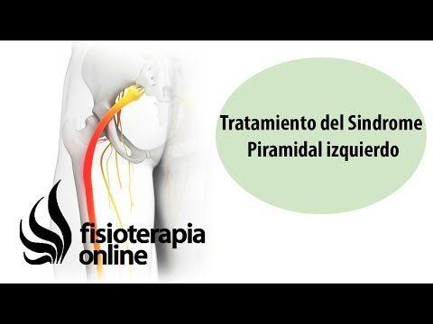 Tratamiento del Síndrome Piramidal izquierdo - YouTube