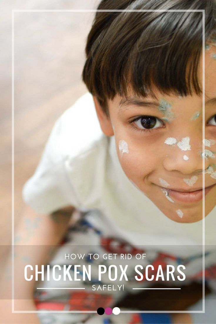 Discover simple and effective ways to get rid of chicken pox scars safely!