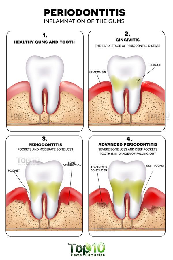 Note: Do consult a dentist for proper diagnosis and treatment of this condition. Use home remedies just as an adjunct treatment. Periodontitis, formerly known as pyorrhea, is an advanced stage of gum disease in which the gums and bones that provide support to the teeth become inflamed and infected. It usually happens due to advanced …
