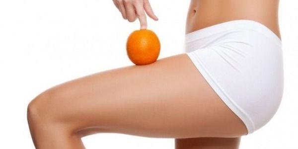 Cellulite: un problema tutto primaverile