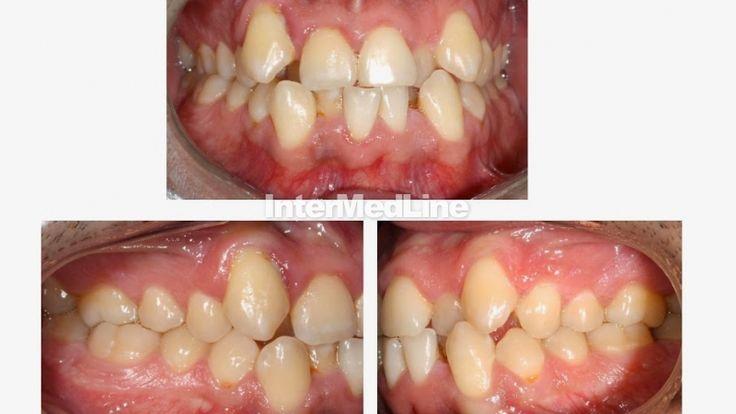 Affordable dental treatment Romania.Orthodontics. Orthodontist. . Dental braces. on Your Medical Tourism ,Facilitator Abroad - The Best Medical Tourism Solutions For You!  http://www.intermedline.com/dental-clinics-romania/ http://www.intermedline.com/wp-content/blogs.dir/1/files/dental-treatment-abroad-dental-clinical-cases-romania/800x600_1387035735_dental_clinical_cases_22.jpg #dental #dentaltreatment #dentists #dental tourism #medicaltourism