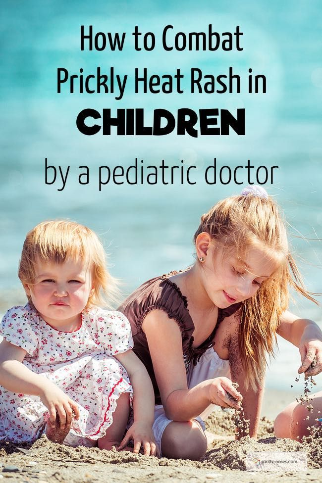 Prickly Heat Rash in Children is horrible. Here's how to avoid it and what you can do if your children do get it. By a pediatrician