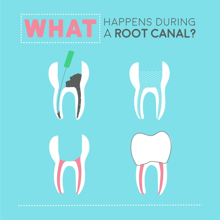 how to know when you need a root canal