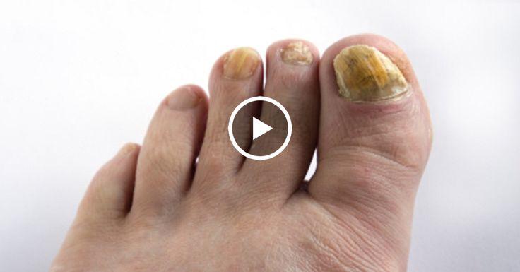 Попрощайся с грибком ногтей с помощью смеси из 2 ингредиентов! 100% результат — проверено!