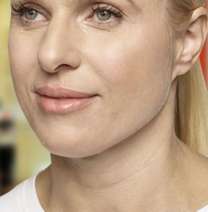 Restylane® Silk (hyaluronic acid): a lip injection