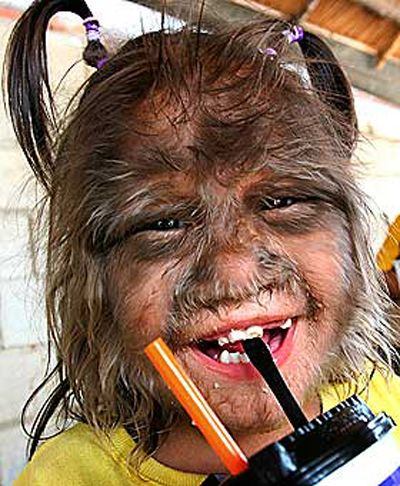 """The Guinness Book of Records has dubbed an eleven-year-old girl from Thailand with the dubious honor of being the """"World's Hairiest Girl."""""""