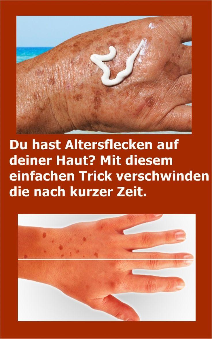 Du hast Altersflecken auf deiner Haut? Mit diesem einfachen Trick verschwinden die nach kurzer Zeit.