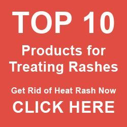 Top 10 PRODUCTS for HEAT RASH - TREATMENT (i.e. MILIARIA, SWEAT RASH, PRICKLY HEAT) *due to damp, humid conditions: sweat pores get blocked/clogged- the sweat has no other place to go, remains logged under skin causing irritation, pain, itchiness = erupts in tiny rashes, painful pustules, boils