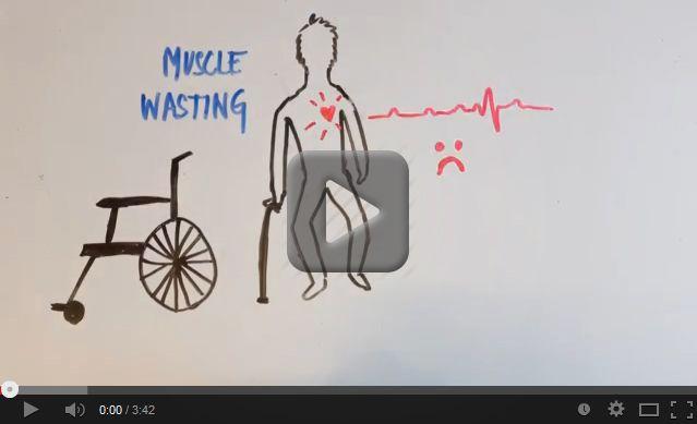 Myotonic Dystrophy Video screenshot