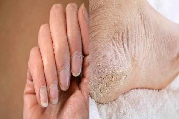 10 otthoni gyógymód száraz bőrre, berepedt sarokra és ra