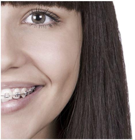 Mis dientes han estado desalineados durante 50 años. ¿Por qué es importante ahora la #ortodoncia? Un tratamiento de #ortodoncia es una buena decisión especialmente en adultos con problemas de larga duración. El tratamiento de ortodoncia restaura una buena función bucal. Además, unos #dientes que trabajan mejor se ven mejor. Y una saludable y bonita #sonrisa ayuda a mejorar la autoestima, sin importar la edad que uno tenga.