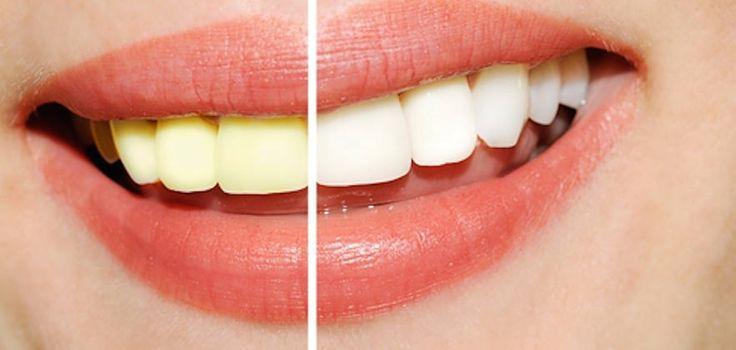 Ben jij ook weleens jaloers op die stralende witte tanden van filmsterren en wil je het liefst ook een mooie Hollywoord-smile? Je kan dan natuurlijk een behandeling onder gaan om