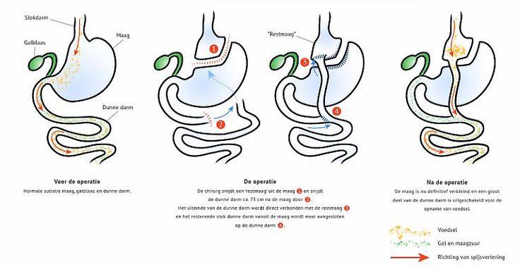 De gastric bypass operatie in het kort