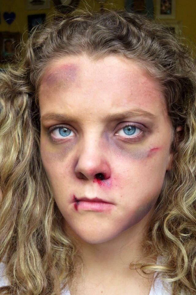 28 best Bruises/Wounds/FX Make-Up images on Pinterest | Fx makeup ...