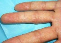 Пузырьки на коже и чешутся водяные пузырьки на руках причины и как лечить