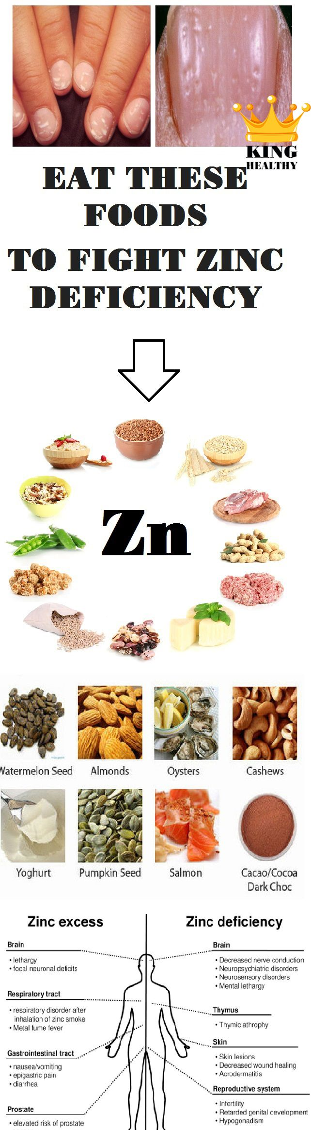 Eat These Foods To Fight Zinc Deficiency - King Healthy Life