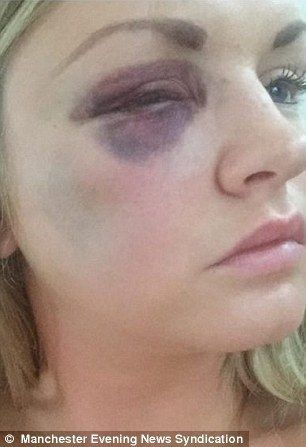 Woman Beating Husband Punches Out 2 Bridesmaids At His Own Wedding! And His Wife Is Defending Him . . .