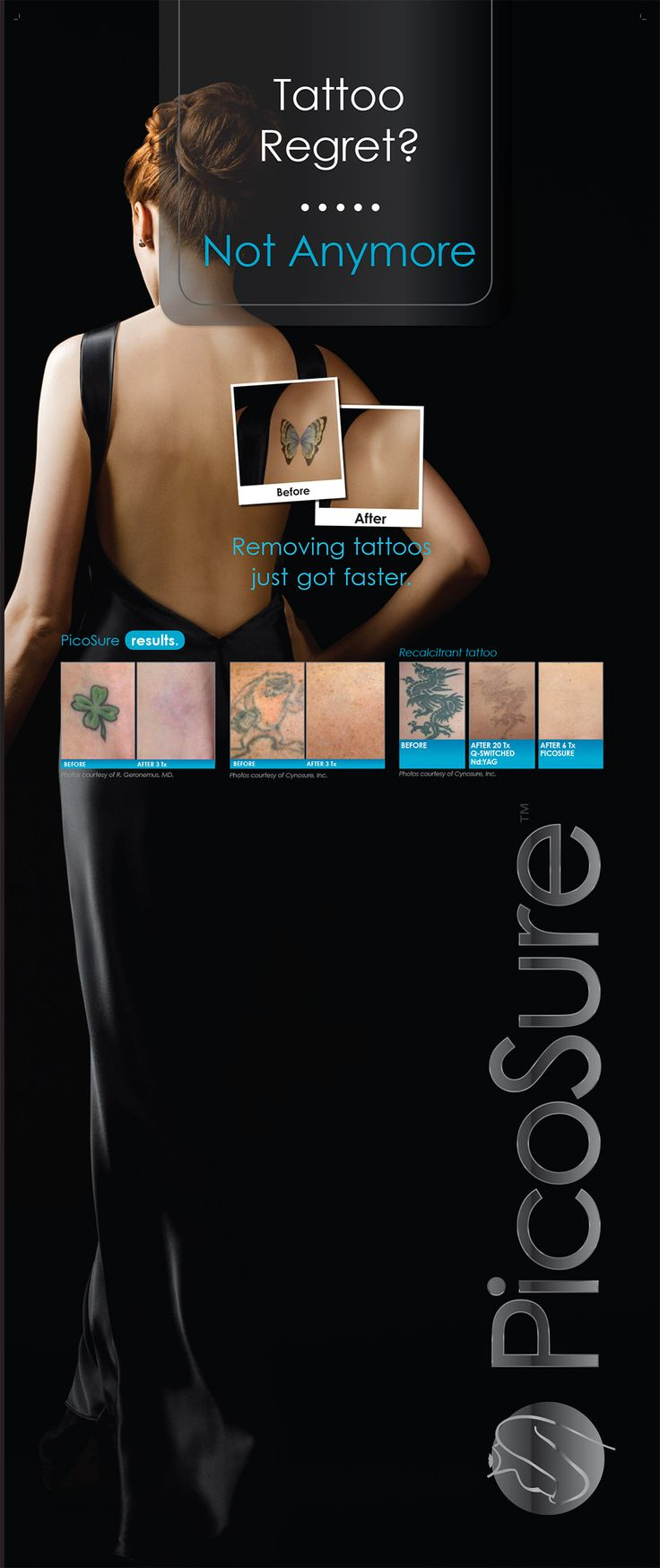 Undo your tattoo with Picosure Laser Tattoo Removal at Carolina Laser & Cosmetic Center in Winston Salem, NC. Call us today! 336-659-2663