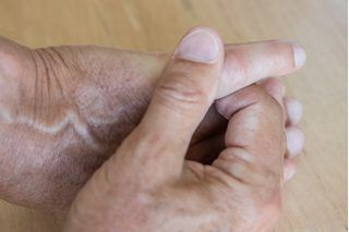 How to Cure Raynaud's Disease Naturally | eHow