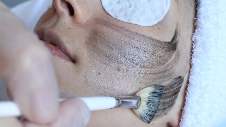 Chemical peels are one of the most misunderstood spa treatments – many of us immediately think of tabloid magazine photos we've seen of a celebrity with red, flaking, painful looking skin. But those images are the result of old, outdated chemical peel formulas that can result in some ...