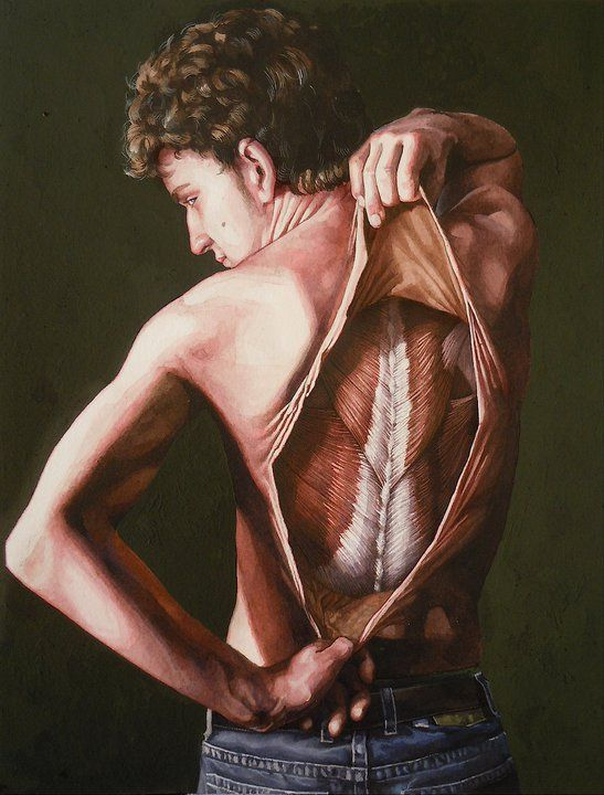 Skinned back (Danny Quirk)